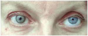 колобома радужки глаза фото