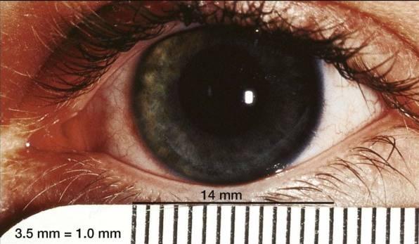 Очки для зрения кошачий взгляд